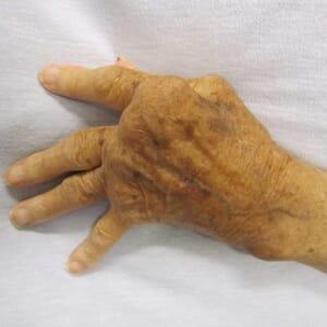 Pre-Clinical Rheumatoid Arthritis Study